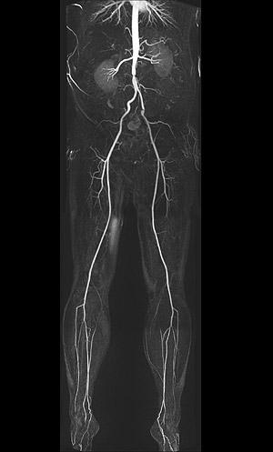 MRT-Kernspintomographie